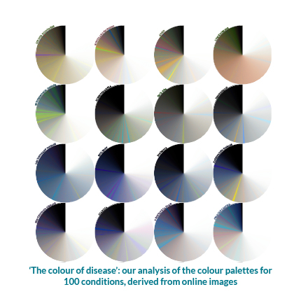 Data visualization: The colour of disease